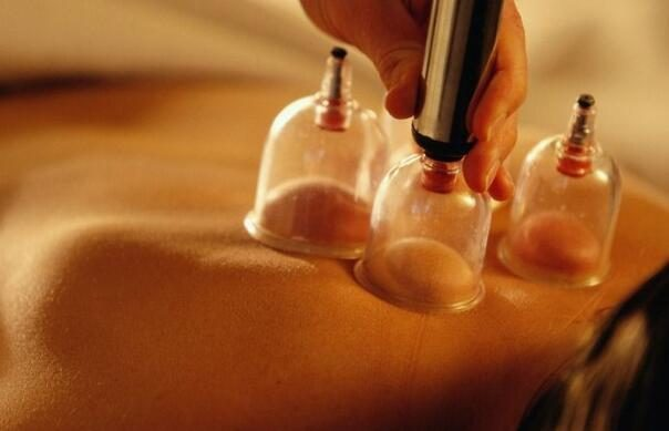 Is the cupping really detox? Is the extracted blisters really a toxin in the body?
