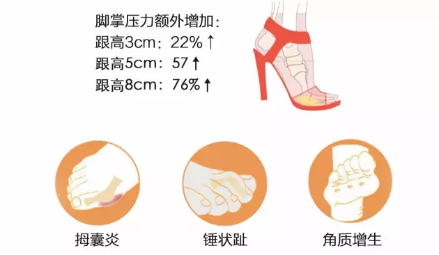 The Cannes Film Festival Twilight Women walk barefoot on the red carpet. Do you know these hazards of wearing high heels?