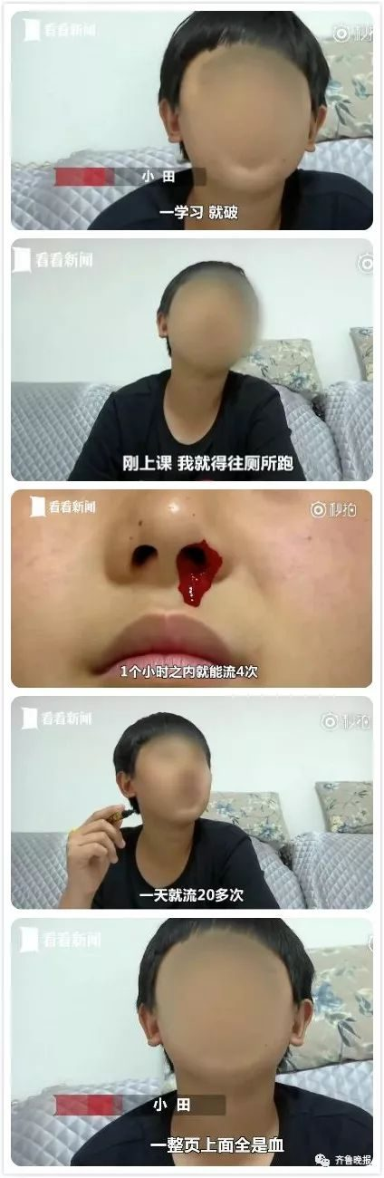 A nosebleed on learning, flow 20 times a day! 12-year-old boy can not leave school... User reviews wonderful