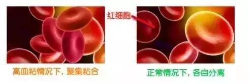 4 signals with thick blood, many people are blocked if they don't pay attention to blood vessels.