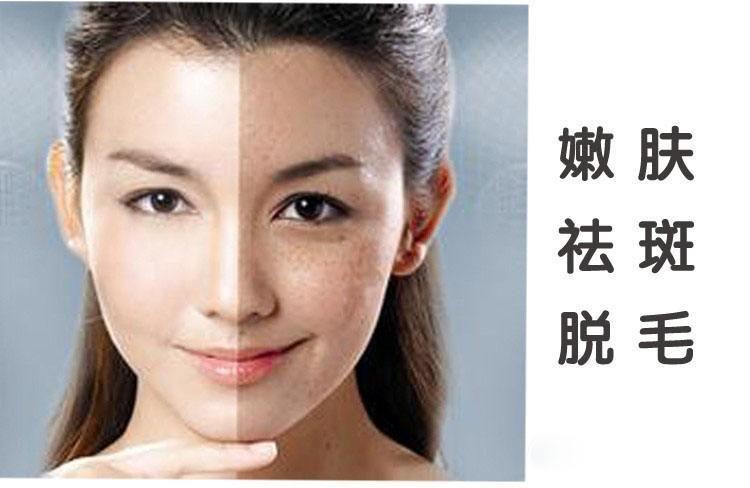 美容祛斑超實用而簡單的4個淡斑小妙招