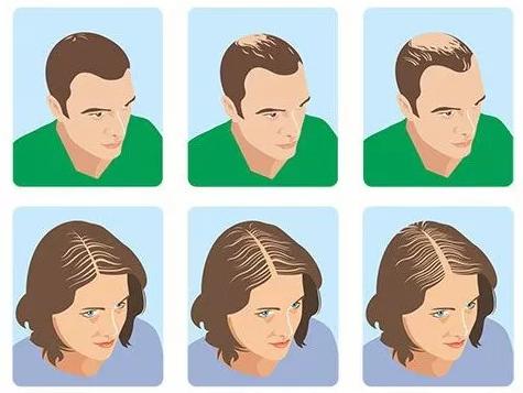 什么是休止期脱发?周期大概多久?
