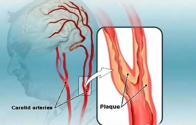 人体最怕堵的血管原来是它!50%中风都和它有关!