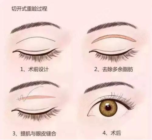 为什么你的双眼皮恢复的这么慢?