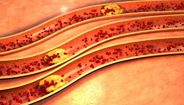 不論男女,7個癥狀總出現,說明你的血管堵了,常做1動作可改善