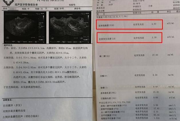 上海去哪里做代孕好:大夫,B超检查卵巢多囊样变,这是多囊卵巢综合征吗?