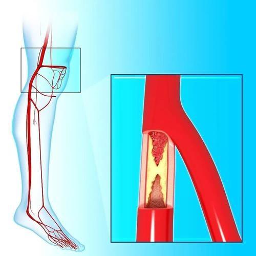 """腿痛、腿麻、腿抽筋?醫生︰不全是缺鈣,或是血管的""""求救信號"""""""